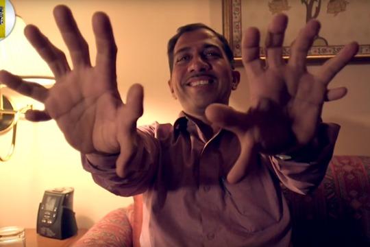 ВИДЕО: Столар од Индија има 28 прсти