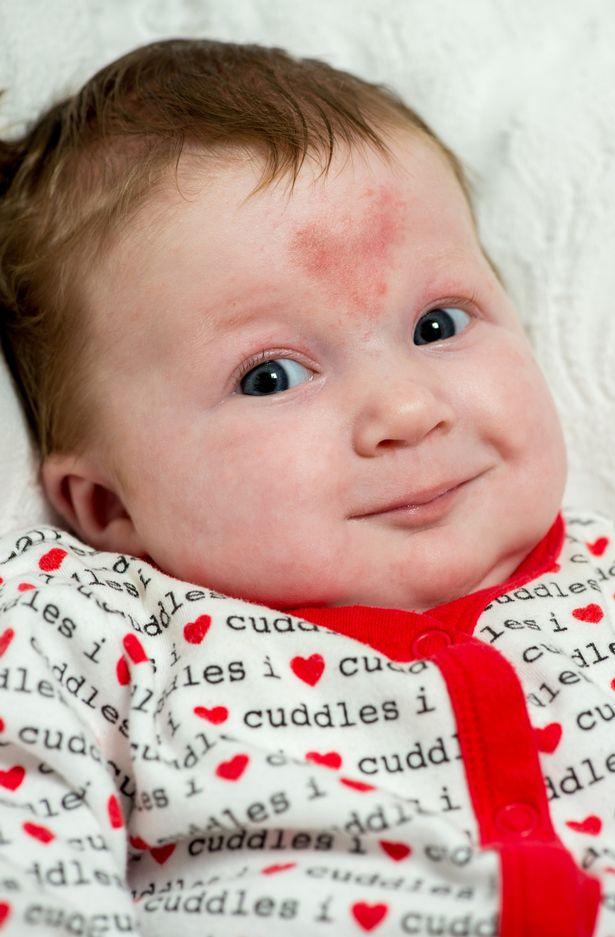 ФОТО: Бебе со белег во форма на срце на челото