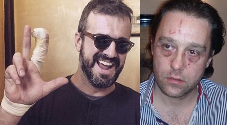 ФОТО: Ова е човекот што го изгризал Сергеј Трифуновиќ