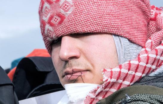 Осум мигранти си ги зашија устите