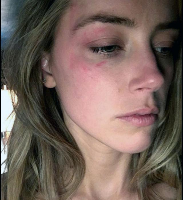 Нови фотографии од претепаната Ембер Херд
