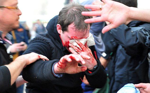 Ердоган го осуди насилството на француската полиција врз демонстрантите