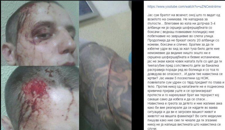 Братот на возачот што го прегази малиот Алмир: Бевме нападнати и бегавме…