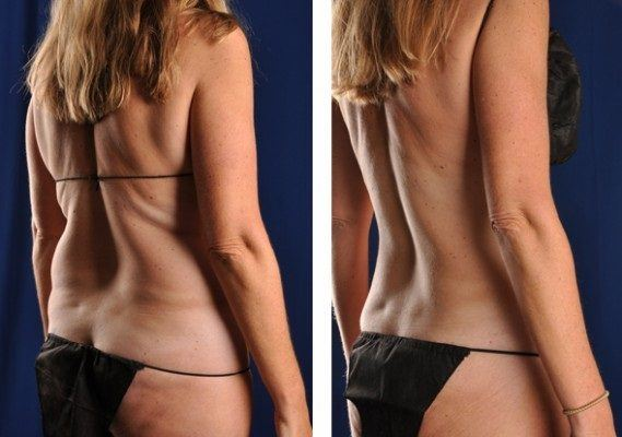 before_after_advancedlipo12-e1328074110415